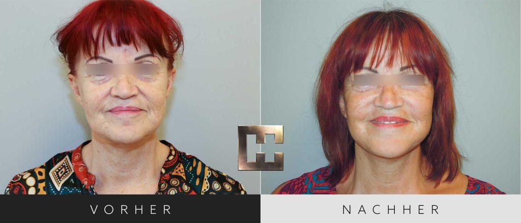 Facelift Vorher Nachher Bilder Patient 001