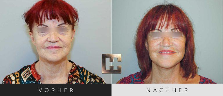 Facelift Vorher Nachher 001 Bild #1