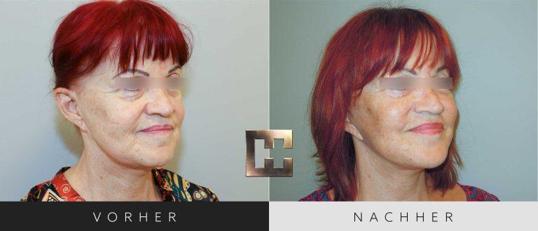 Facelift Vorher Nachher 001 Bild #2