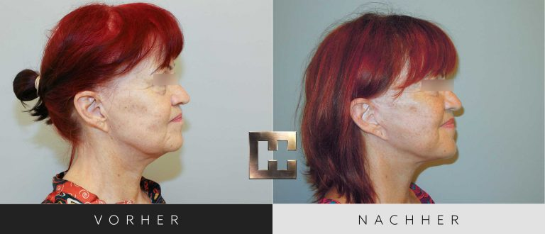 Facelift Vorher Nachher 001 Bild #3