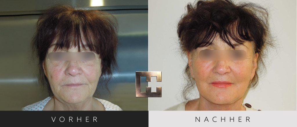 Facelift Vorher Nachher Bilder Patient 002