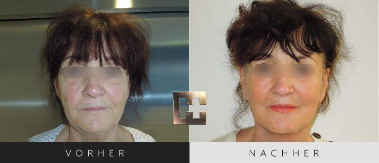 Facelift Vorher Nachher 002 Bild #1