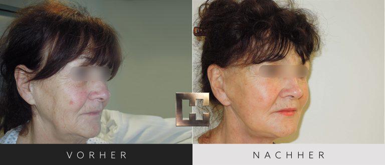 Facelift Vorher Nachher 002 Bild #2
