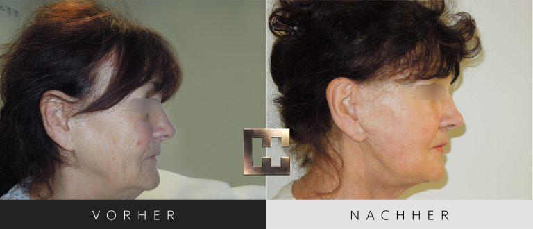 Facelift Vorher Nachher 002 Bild #3