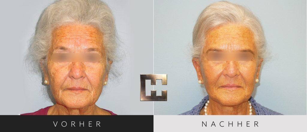 Facelift Vorher Nachher Bilder Patient 003