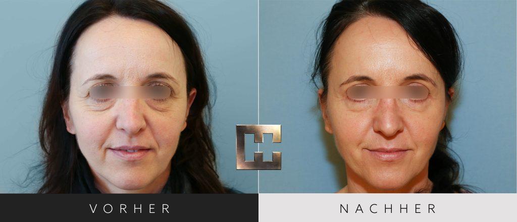 Augenlidkorrektur Vorher Nachher Bilder Patient 010