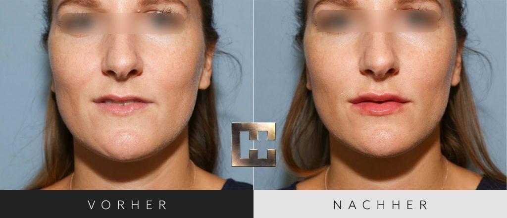 Lippen aufspritzen Vorher Nachher Bilder Patient 011
