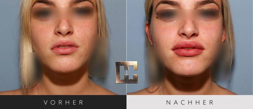 Lippen aufspritzen Vorher Nachher Bilder Patient 012