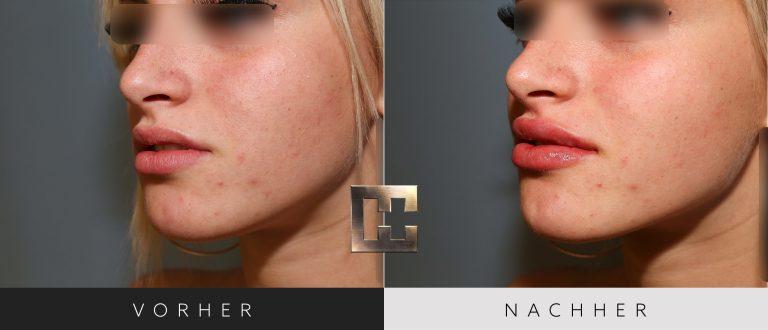 Lippen aufspritzen Vorher Nachher 012 Bild #2