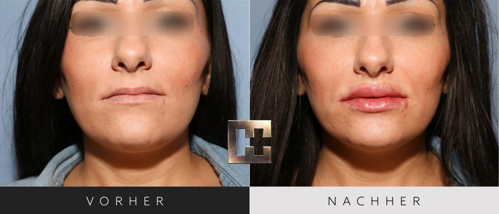 Lippen aufspritzen Vorher Nachher Bilder Patient 014