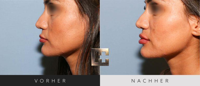 Lippen aufspritzen Vorher Nachher 015 Bild #2