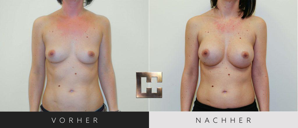 Brustvergrößerung Vorher Nachher Bilder Patient 016