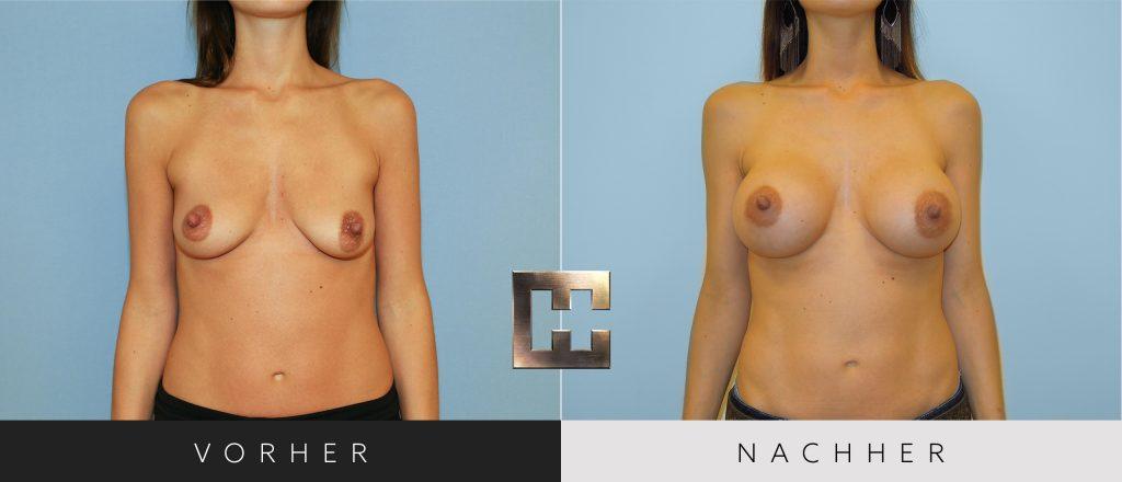 Brustvergrößerung Vorher Nachher Bilder Patient 017