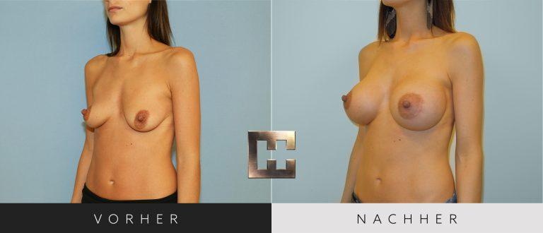 Brustvergrößerung Vorher Nachher 017 Bild #2