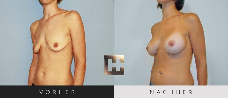 Brustvergrößerung Vorher Nachher 018 Bild #2