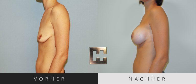Brustvergrößerung Vorher Nachher 018 Bild #3