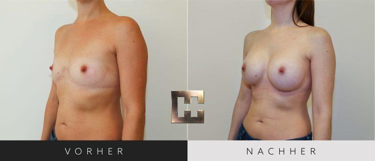 Brustvergrößerung Vorher Nachher 019 Bild #2
