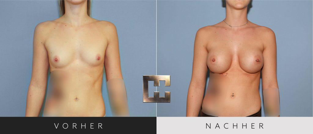Brustvergrößerung Vorher Nachher Bilder Patient 020