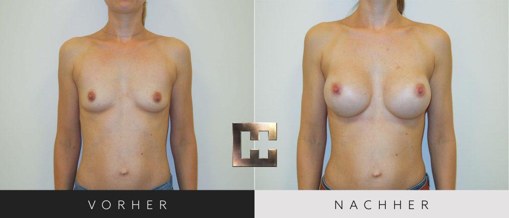 Brustvergrößerung Vorher Nachher Bilder Patient 021
