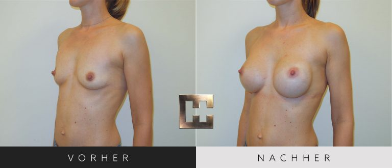 Brustvergrößerung Vorher Nachher 021 Bild #2