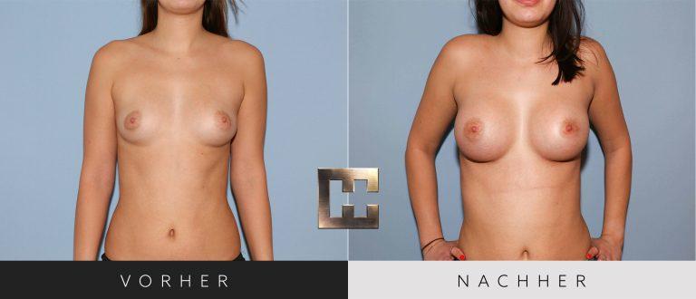 Brustvergrößerung Vorher Nachher 022 Bild #1