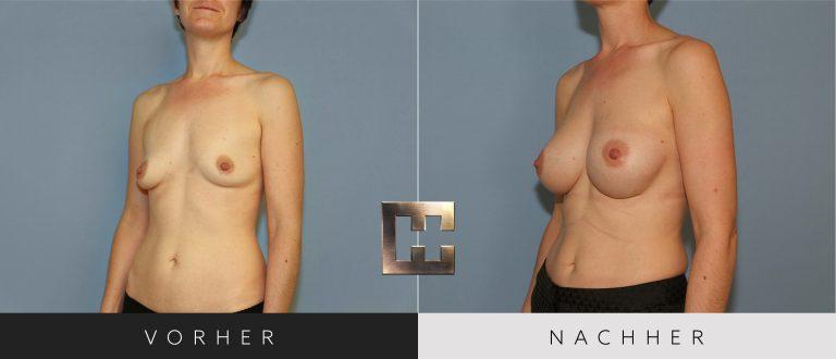 Brustvergrößerung Vorher Nachher 023 Bild #2