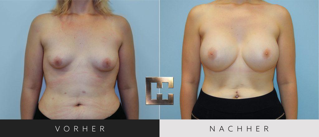 Brustvergrößerung Vorher Nachher Bilder Patient 024