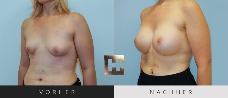 Brustvergrößerung Vorher Nachher 024 Bild #2