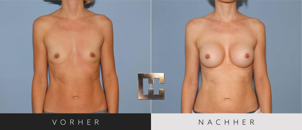 Brustvergrößerung Vorher Nachher Bilder Patient 025