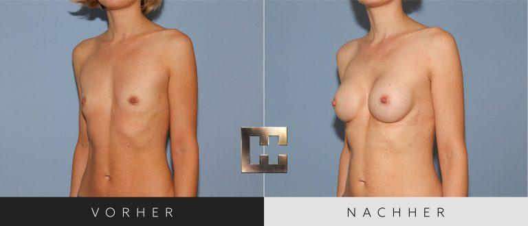 Brustvergrößerung Vorher Nachher 025 Bild #2