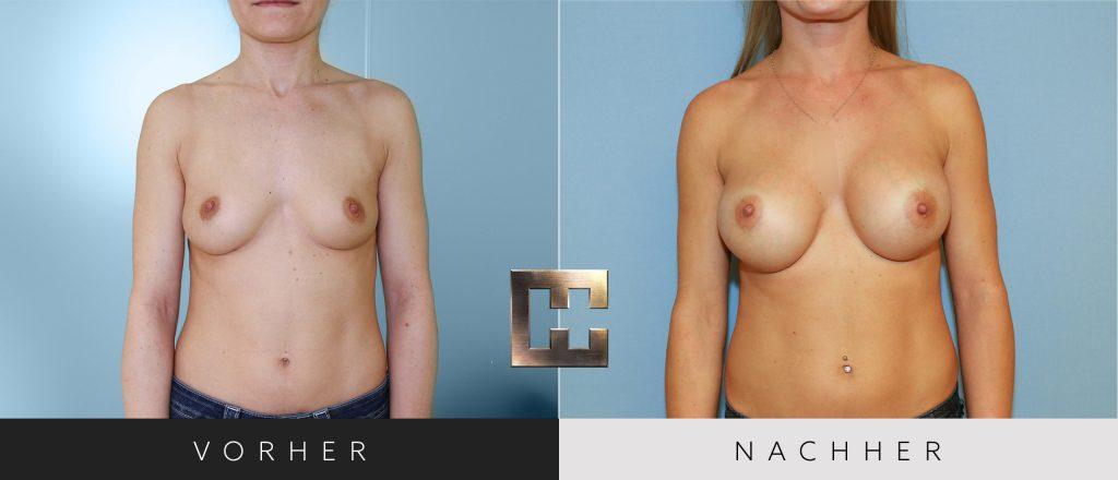 Brustvergrößerung Vorher Nachher Bilder Patient 027