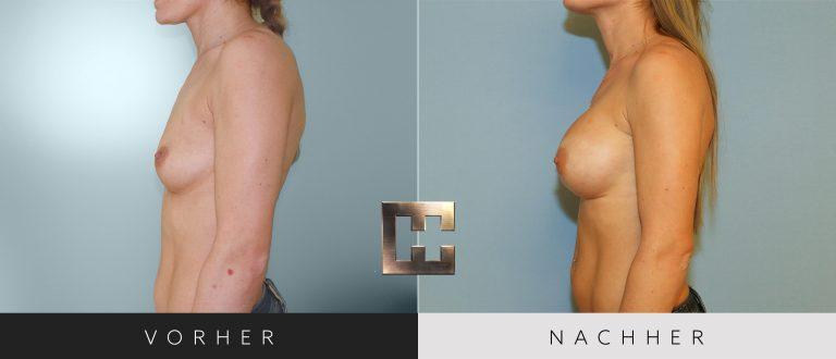 Brustvergrößerung Vorher Nachher 027 Bild #3
