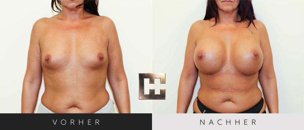 Brustvergrößerung Vorher Nachher Bilder Patient 028