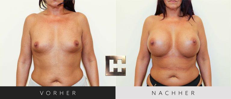 Brustvergrößerung Vorher Nachher 028 Bild #1