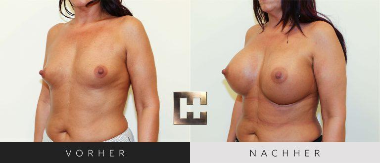 Brustvergrößerung Vorher Nachher 028 Bild #2