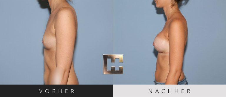 Brustvergrößerung Vorher Nachher 029 Bild #3