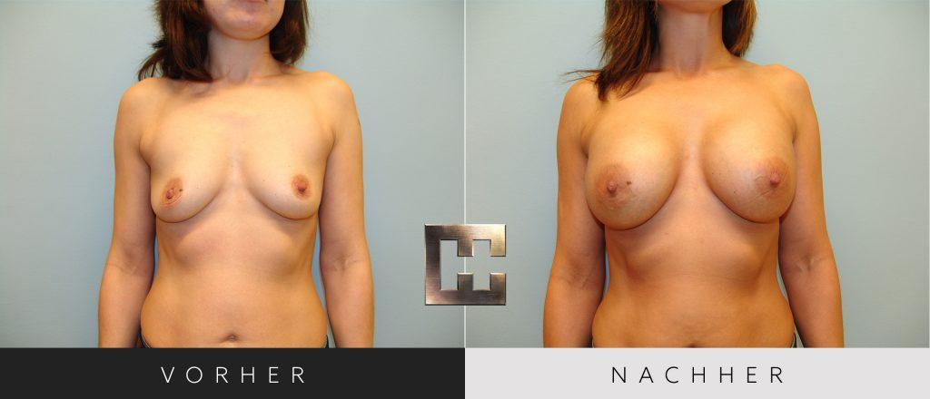 Brustvergrößerung Vorher Nachher Bilder Patient 030