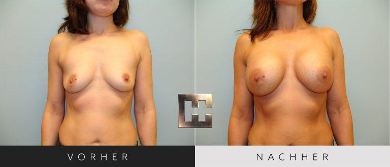 Brustvergrößerung Vorher Nachher 030 Bild #1