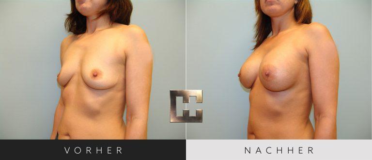 Brustvergrößerung Vorher Nachher 030 Bild #2