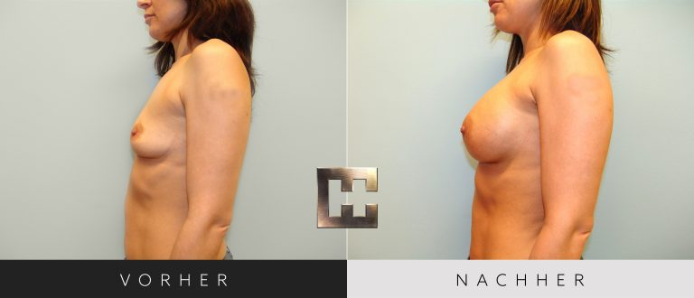 Brustvergrößerung Vorher Nachher 030 Bild #3