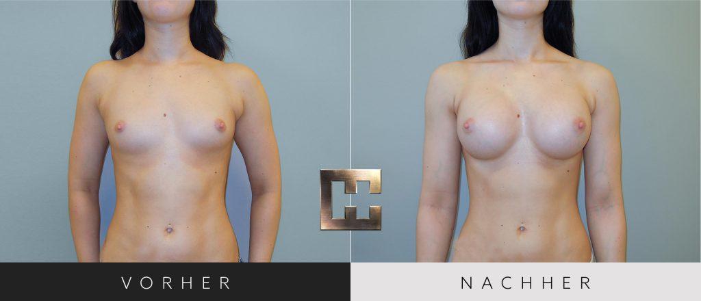 Brustvergrößerung Vorher Nachher Bilder Patient 031