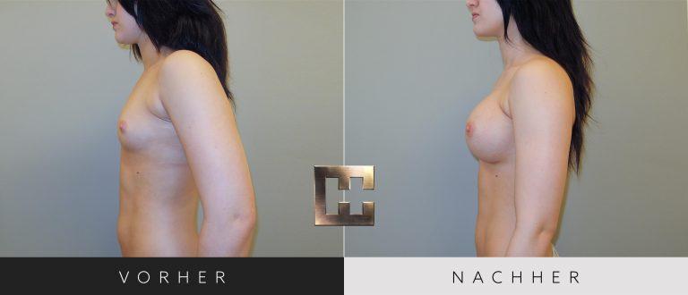 Brustvergrößerung  Vorher Nachher 031 Bild #3