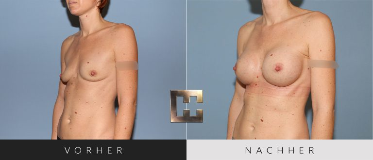 Brustvergrößerung Vorher Nachher 033 Bild #2