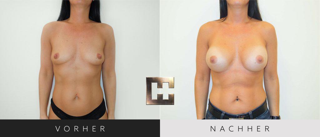 Brustvergrößerung Vorher Nachher Bilder Patient 035
