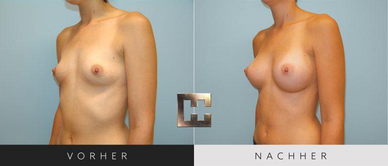 Brustvergrößerung Vorher Nachher 037 Bild #2