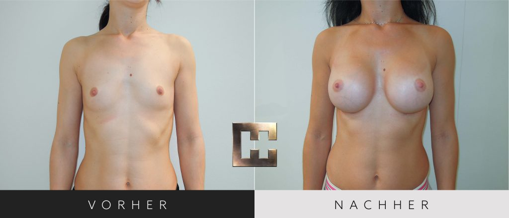 Brustvergrößerung Vorher Nachher Bilder Patient 038