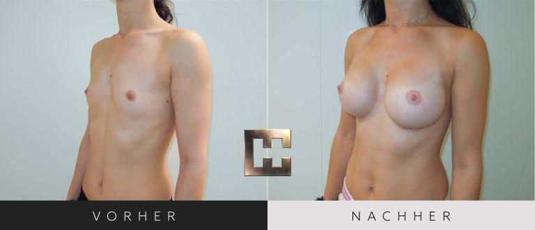 Brustvergrößerung Vorher Nachher 038 Bild #2