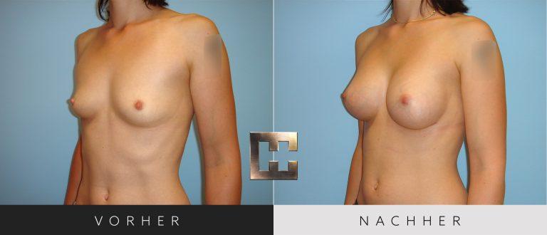 Brustvergrößerung Vorher Nachher 040 Bild #2