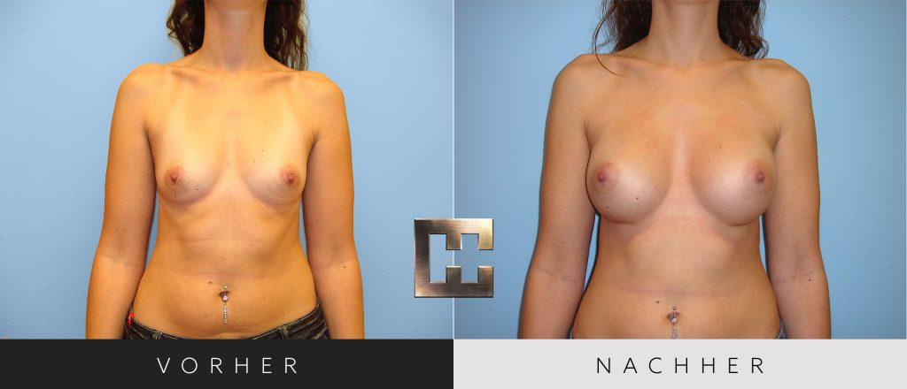 Brustvergrößerung Vorher Nachher Bilder Patient 041