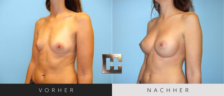 Brustvergrößerung Vorher Nachher 041 Bild #2